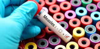 Measles Vaccine